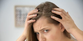 woman with hair loss problem